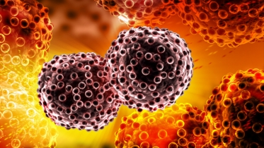 Cancer cells (courtesy of Shutterstock)