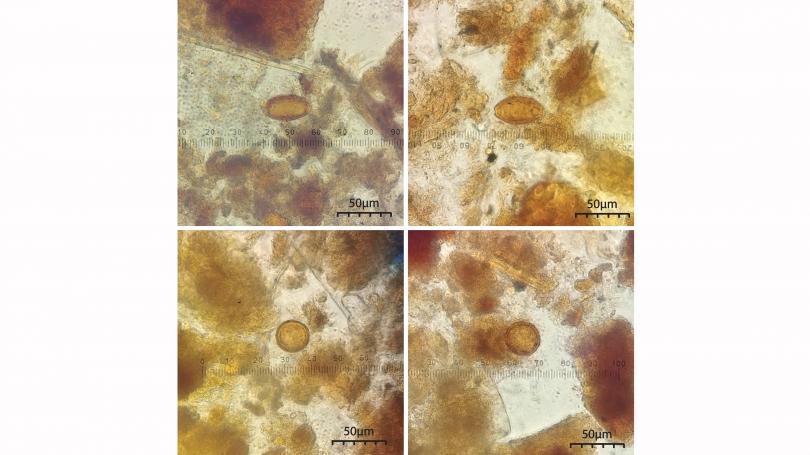Parasite eggs under magnification.